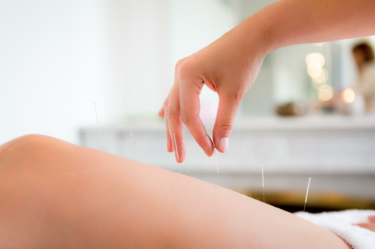 Acuslim, La méthode acupunture qui révolutionne la minceur en douceur